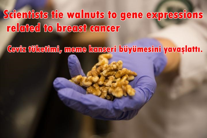 Scientists tie walnuts to gene expressions related to breast cancer